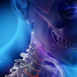 Chiropractor for Whiplash Injury